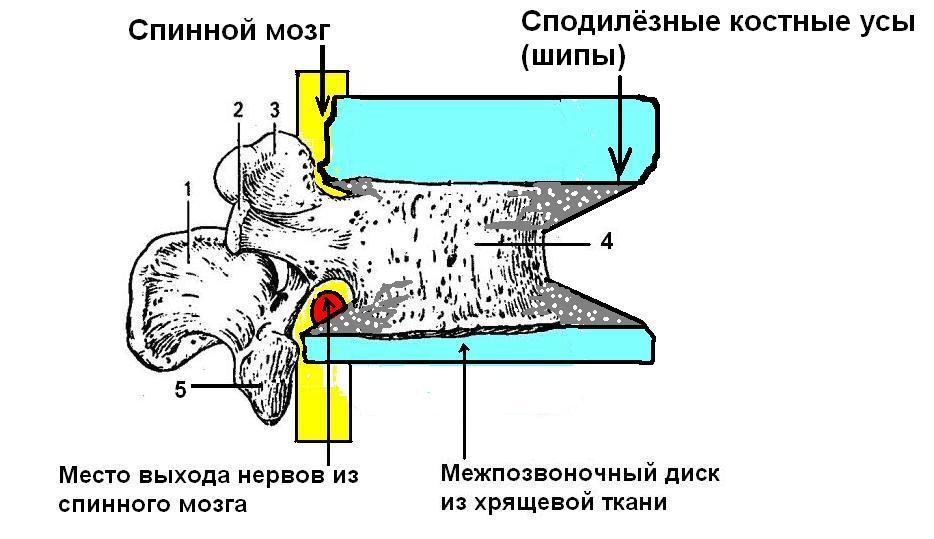 Остеофит фото